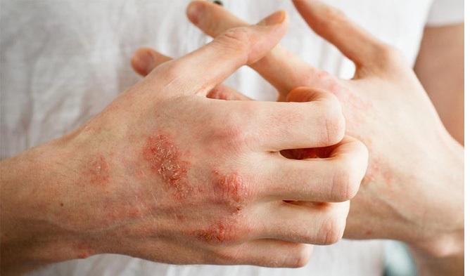 Bệnh Chàm Là Gì? Nguyên Nhân | Triệu Chứng & Cách Điều Trị