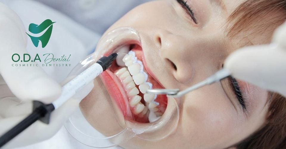 Bị lệch khớp cắn nguy hiểm như thế nào? – Giải đáp cùng nha sĩ của nha khoa ODA