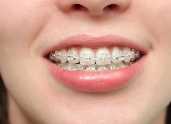 Top 3 Phòng khám nha khoa Niềng Răng Tốt Nhất Chất Lượng Tại TPHCM