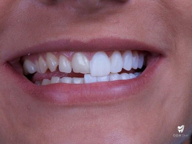 Chỉnh răng nha kha khoa thẩm mỹ không cần phải niềng răng