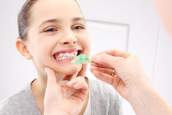 Thời gian niềng răng mất bao lâu để hoàn thành việc niềng ?