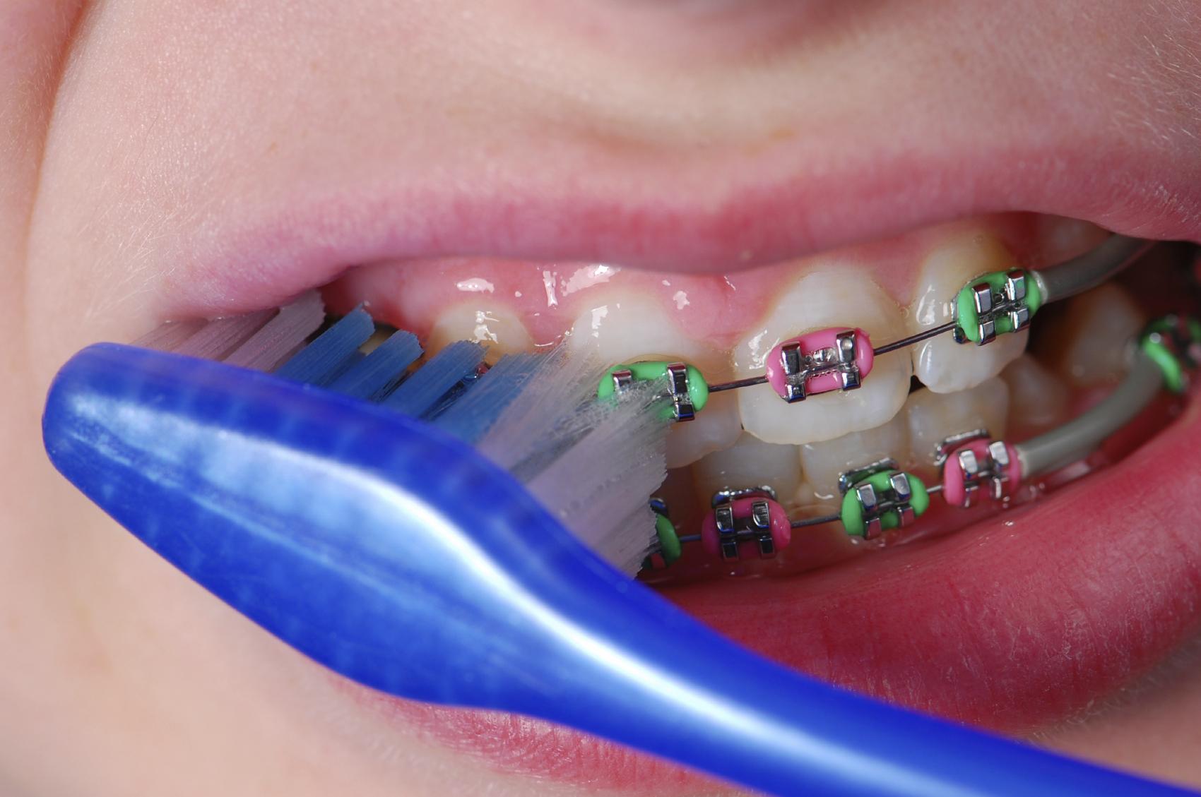 Những dụng cụ không thể thiếu khi niềng răng thẩm mỹ