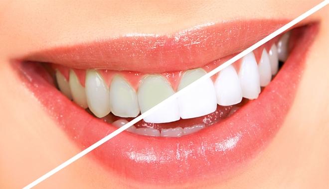 Tại sao việc tẩy trắng răng khiến răng bị ê buốt?   Nha khoa ODA