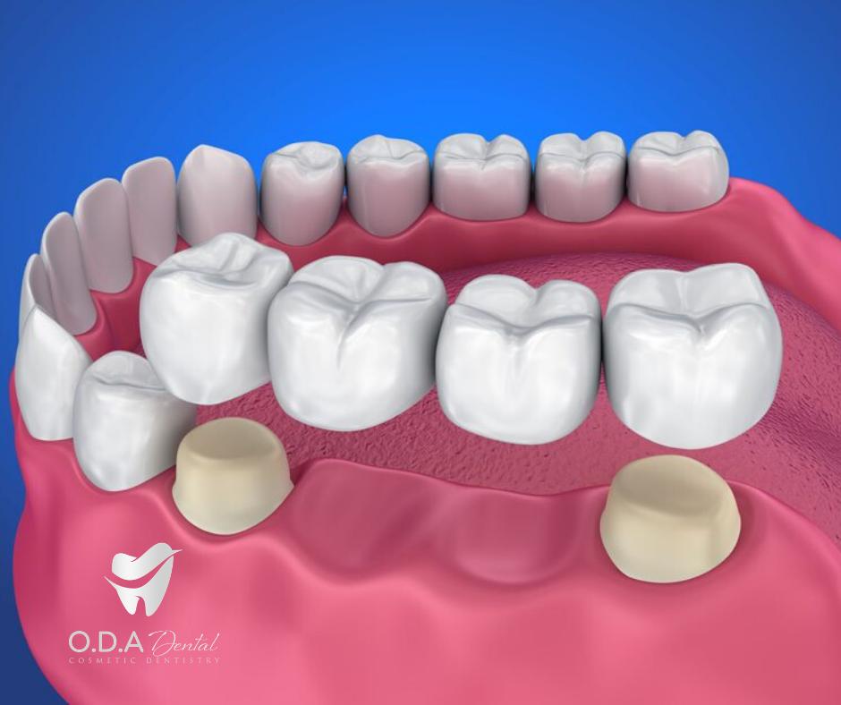 Làm răng sứ giá bao nhiêu cho người bị mất răng vĩnh viễn