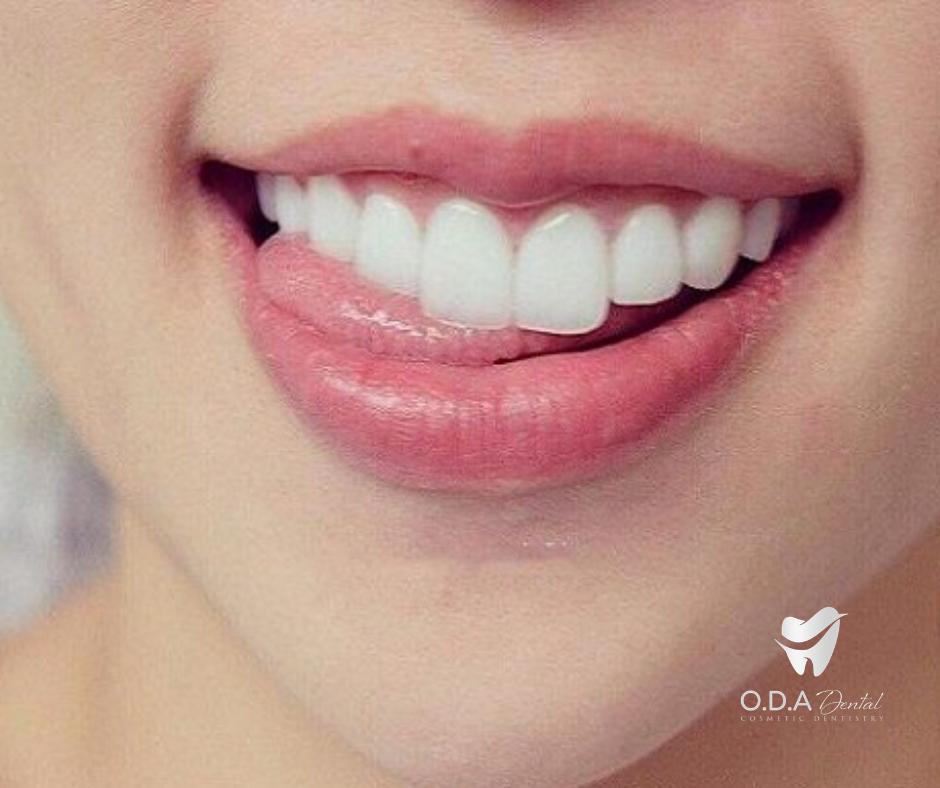 Vì Sao Khách Hàng Nên Tẩy Trắng Răng?