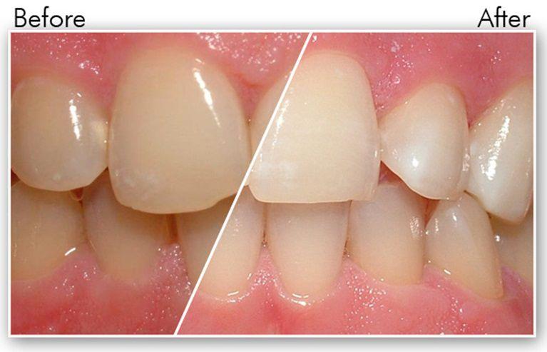 Phương pháp tẩy trắng răng ảnh hưởng đến sức khỏe như thế nào