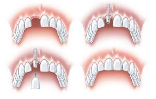 Tư vấn loại răng giả tháo lắp – cố định phù hợp cho người già