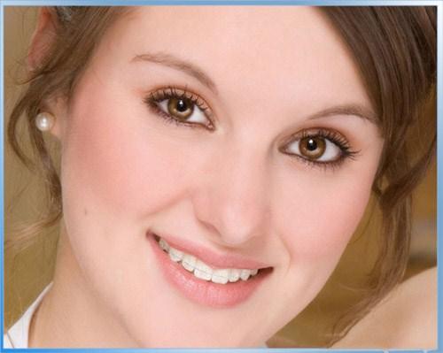Phương pháp niềng răng mắc cài sứ có tốt không?