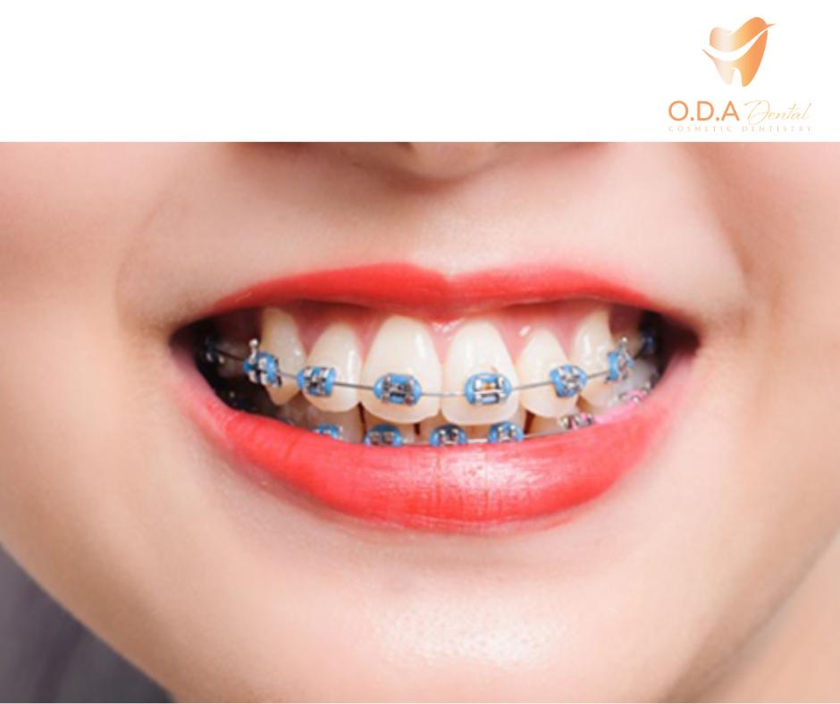 Dịch vụ niềng răng giá rẻ tphcm – Những điều bạn nên biết