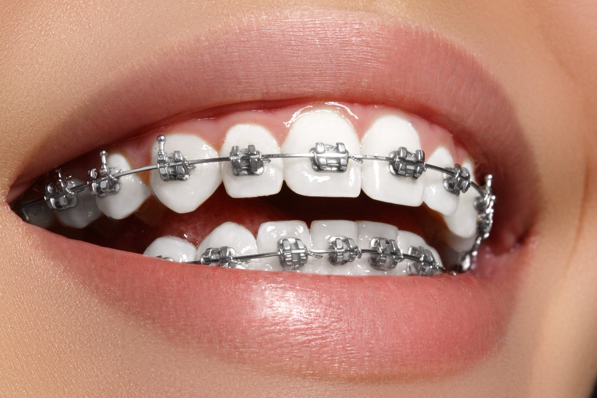 Niềng răng mắc cài tự đóng có những ưu điểm nào?