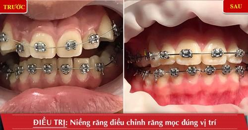 Những ưu điểm tuyệt vời của niềng răng mắc cài tự đóng