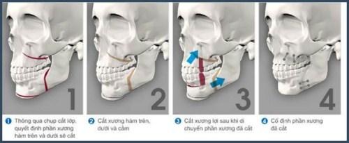 Răng hô có phải di truyền không? Các cách điều trị răng hô hiện nay