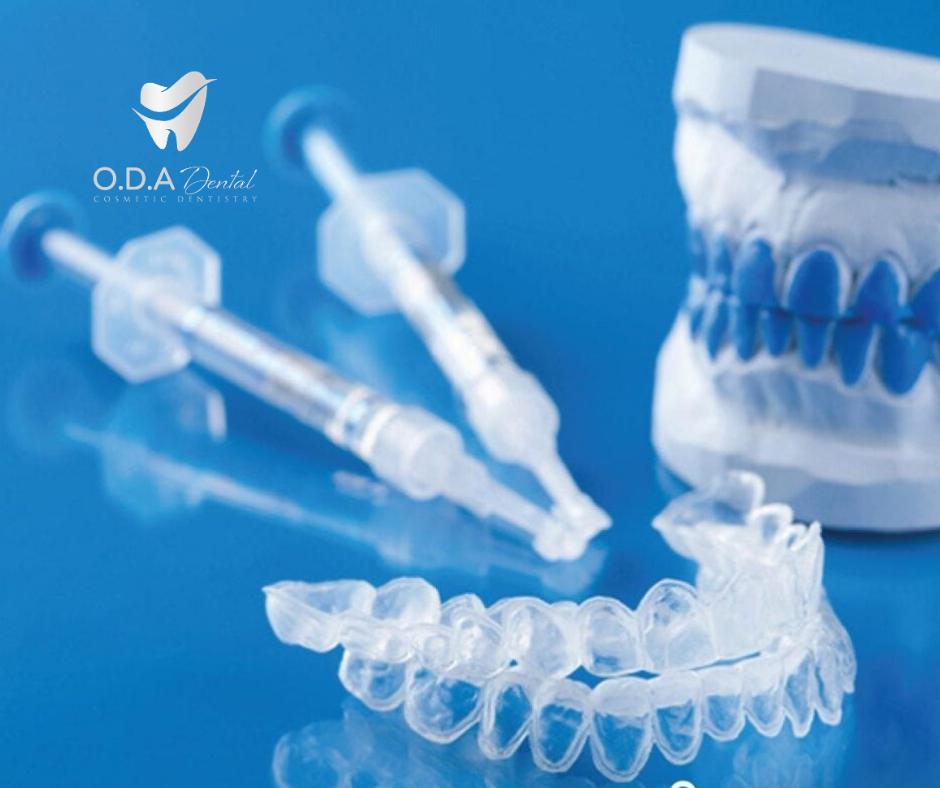 Quy Trình Chuẩn Nhất Cho Phương Pháp Tẩy Trắng Răng Tại Nhà