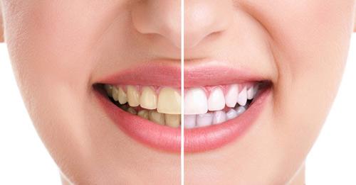 Những điều bạn nên biết về các cách tẩy trắng răng hiện nay