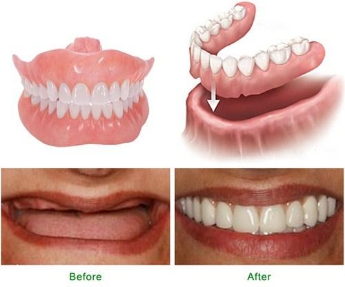 Tìm hiểu tất cả về phương pháp làm răng giả tháo lắp