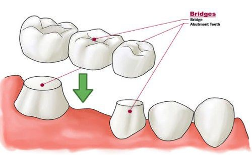 Người cao tuổi nên đeo loại răng giả tháo lắp – cố định nào?