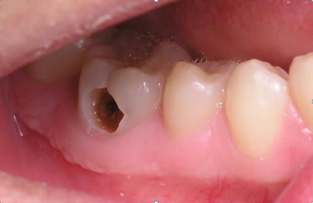 Nha khoa quận 10   Các loại bệnh lí răng miệng thường gặp ở người già