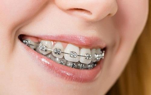 Vệ sinh và chăm sóc răng miệng đúng cách khi niềng răng